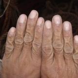 05   البلل المستمر يؤثر على الأيدي
